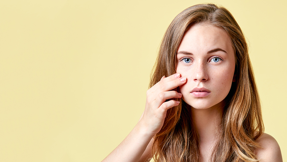 vitallife-beauty-Acne_Scarring-903214374.jpg