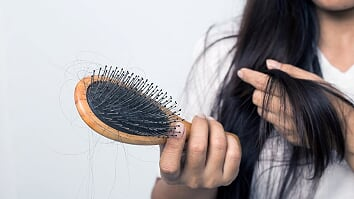 vitallife-beauty-Hair_Loss-960155968.jpg